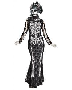 Lacy Bones